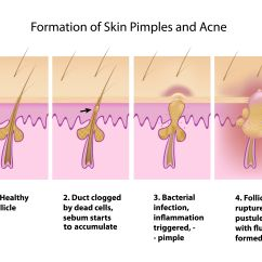 Pimples On Cheek Diagram Single Phase Submersible Starter Wiring What Are The Causes Of Acne Understand Them Before You