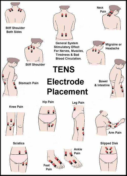 Tens unit placement guide full body also electrode prohealthcareproducts rh