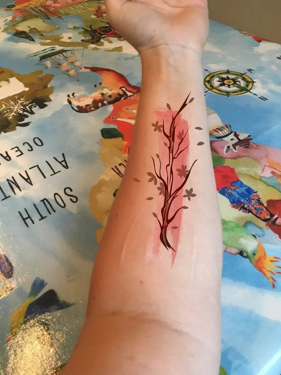 Tattoo To Cover Scars : tattoo, cover, scars, Entry, Studiobd19, Tattoo, Design, Forearm,, Incorporate, Scars,, Cover, Them., Possibly, Something, Phoenix, Rising., Would, Delicate