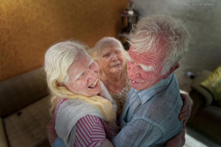 """silviaalessi skinproject albinismo009 - 14 fotografías de """"Skin Project"""": Una serie de retratos de albinos y mujeres quemadas con ácido"""