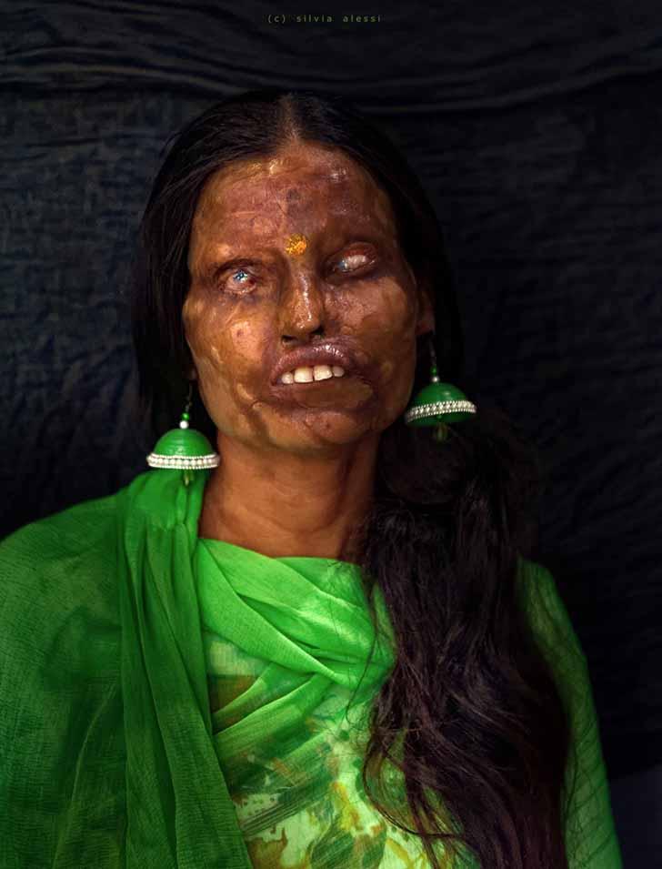 """silviaalessi skinproject013 1 - 14 fotografías de """"Skin Project"""": Una serie de retratos de albinos y mujeres quemadas con ácido"""