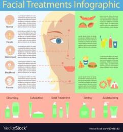 pimple diagram face [ 1000 x 1079 Pixel ]