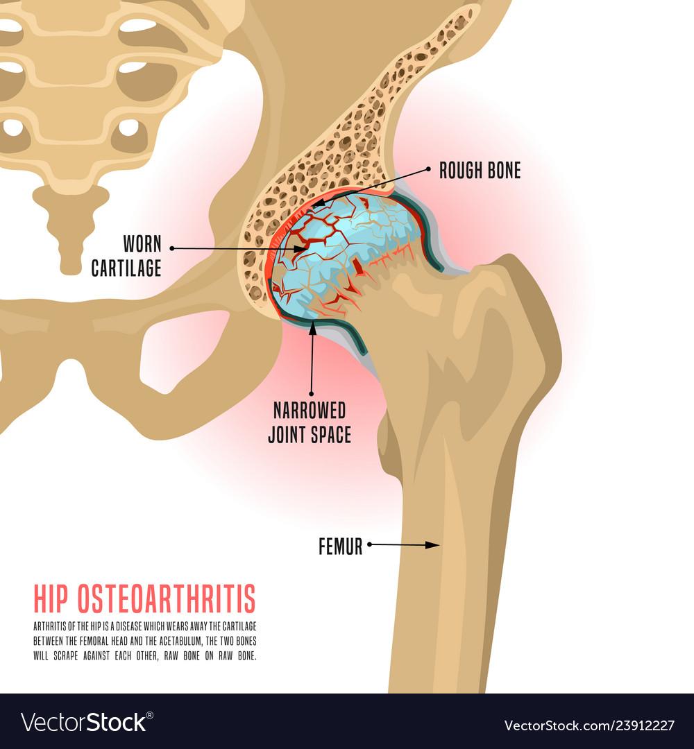 medium resolution of diagram showing hip bone