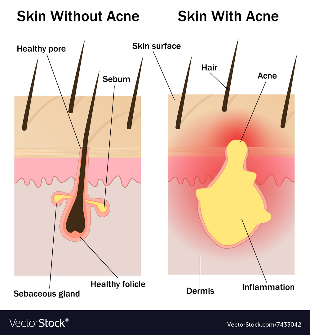 medium resolution of skin with and without acne vector image