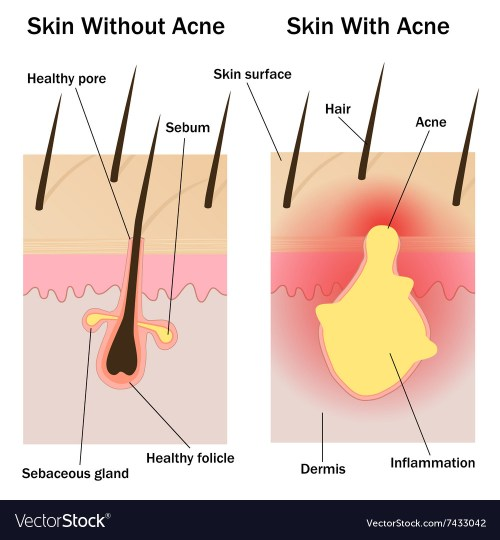 small resolution of skin with and without acne vector image