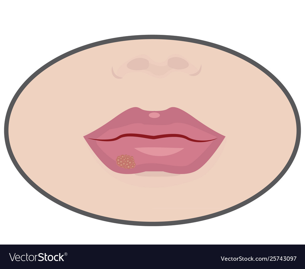 hight resolution of diagram of cold sore