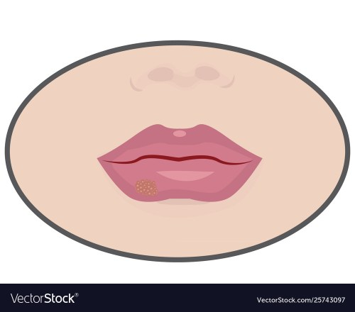 small resolution of diagram of cold sore