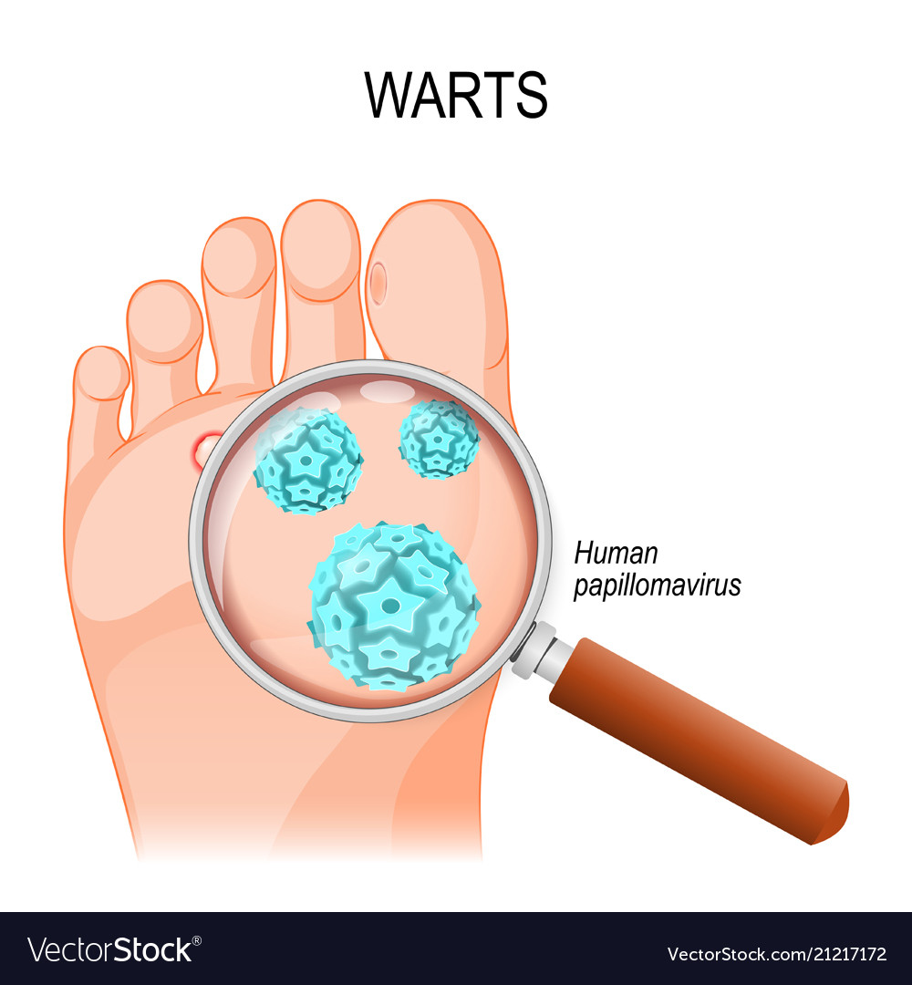 hight resolution of foot warts close up of hpv vector image