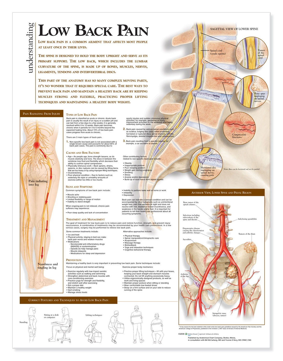 hight resolution of understanding low back pain anatomical chart anatomy models and anatomical charts