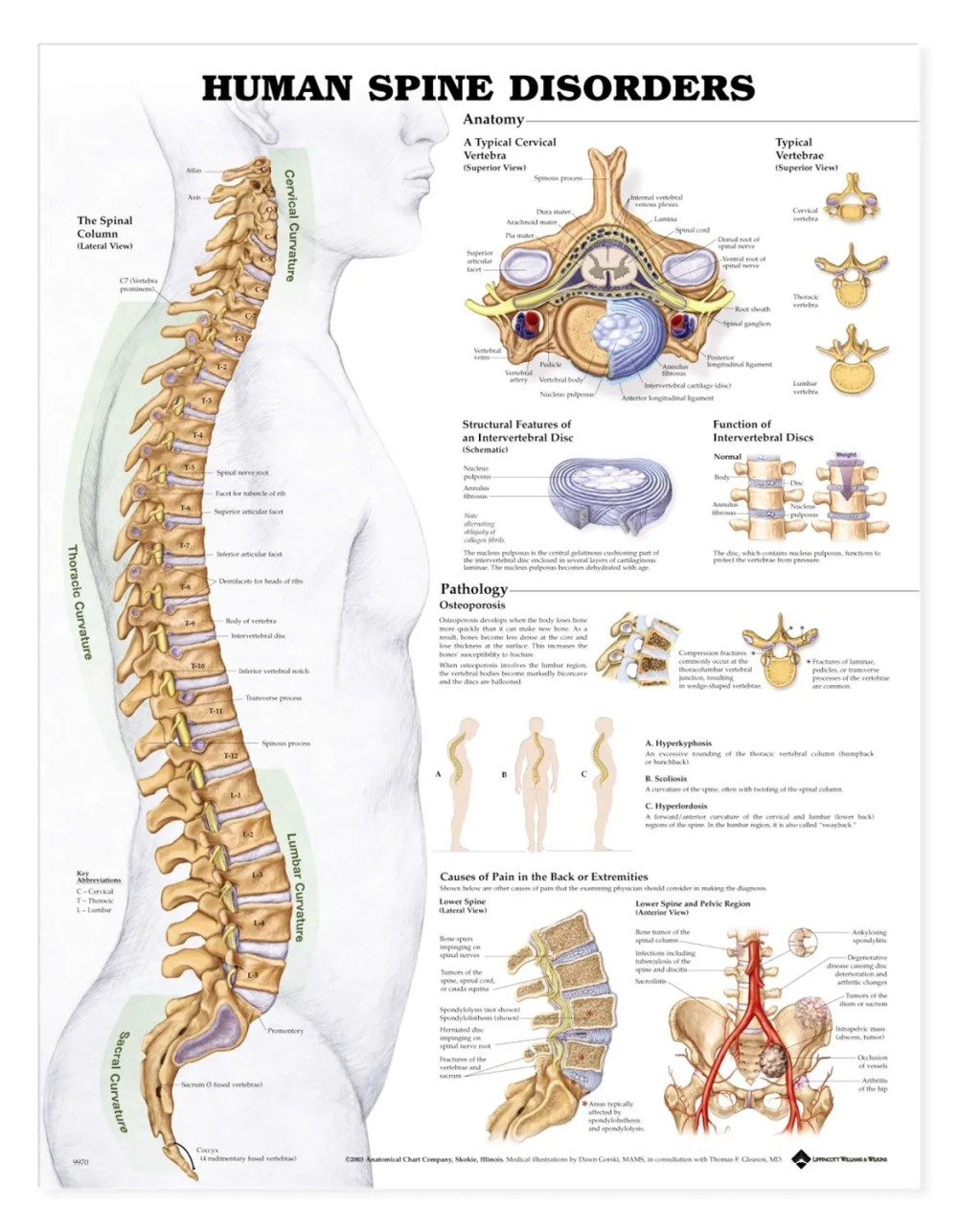 medium resolution of human spine disorders anatomical chart anatomy models and anatomical charts
