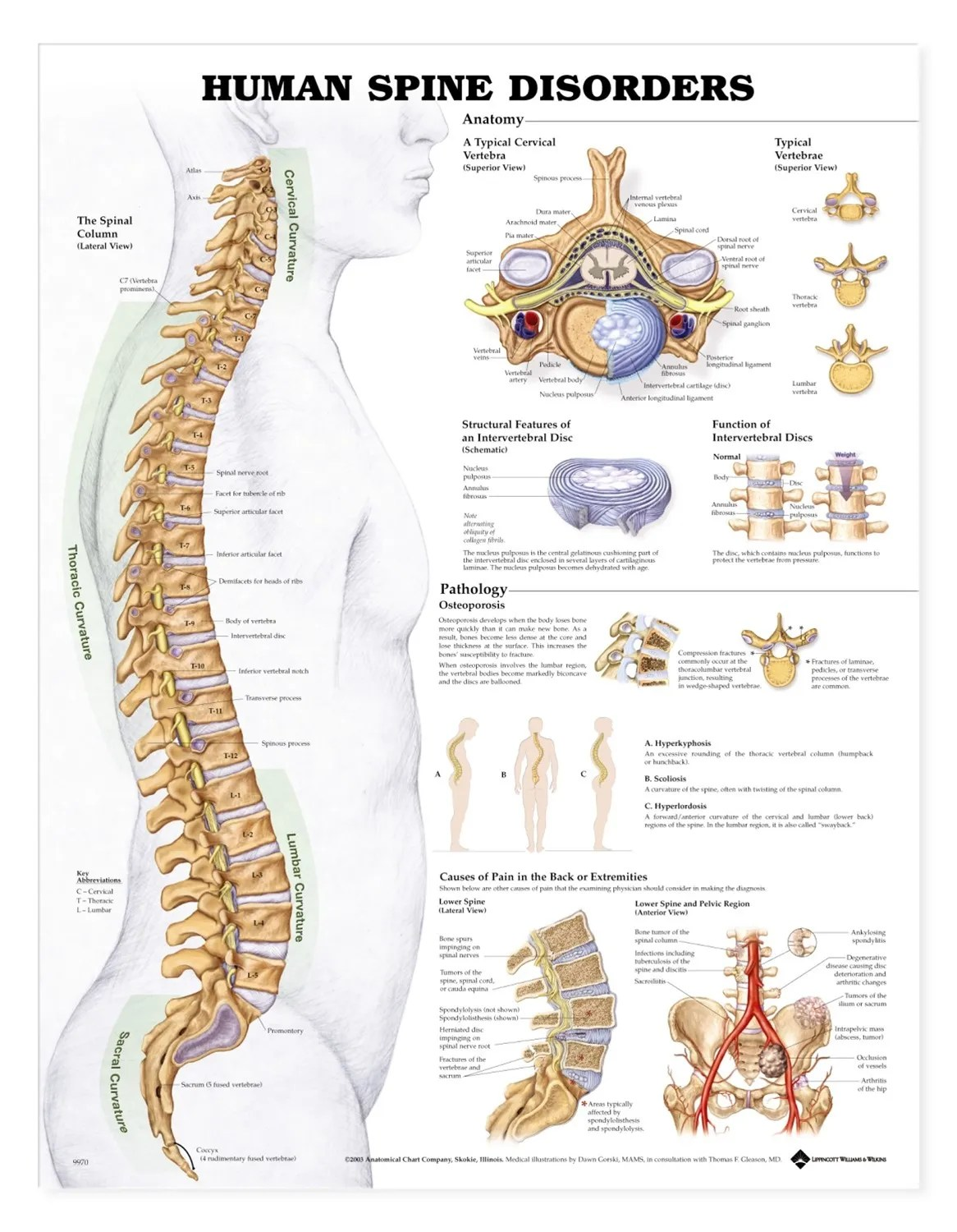 hight resolution of human spine disorders anatomical chart anatomy models and anatomical charts