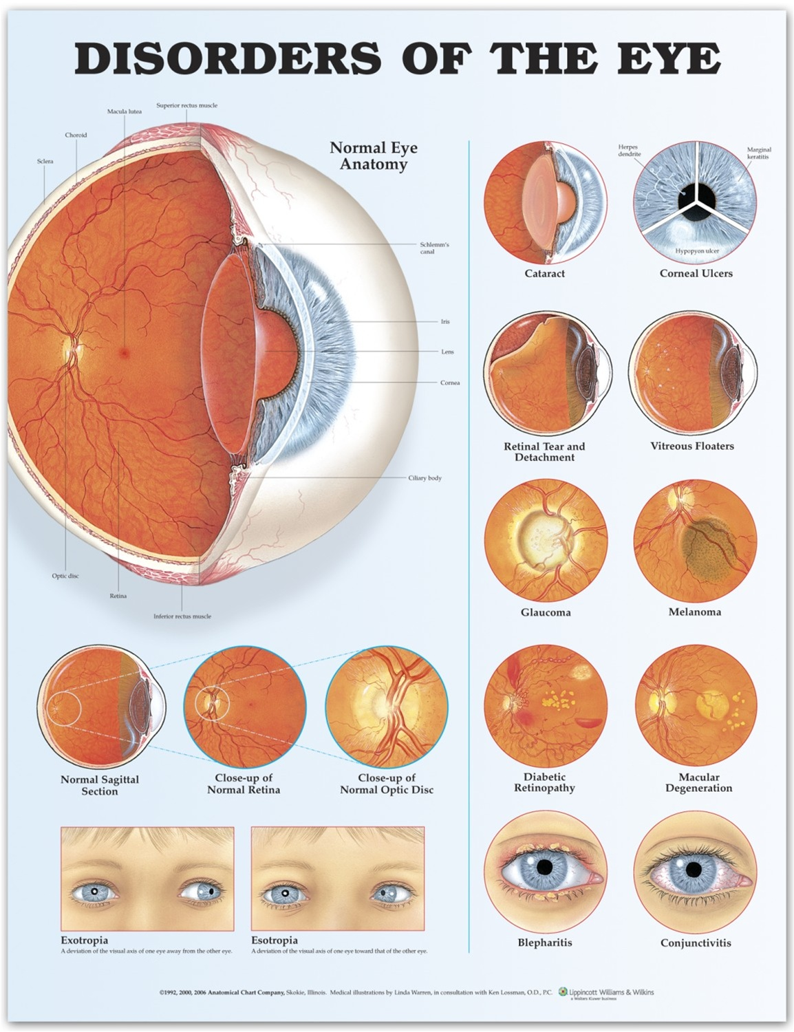 hight resolution of disorders of the eye anatomical chart 2nd edition anatomy models and anatomical charts