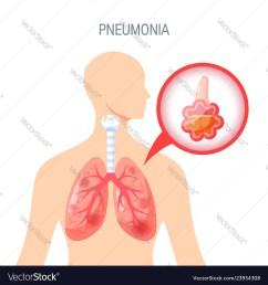 pneumonium diagram [ 999 x 1080 Pixel ]