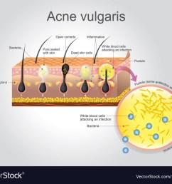 acne vulgaris vector image [ 1000 x 829 Pixel ]