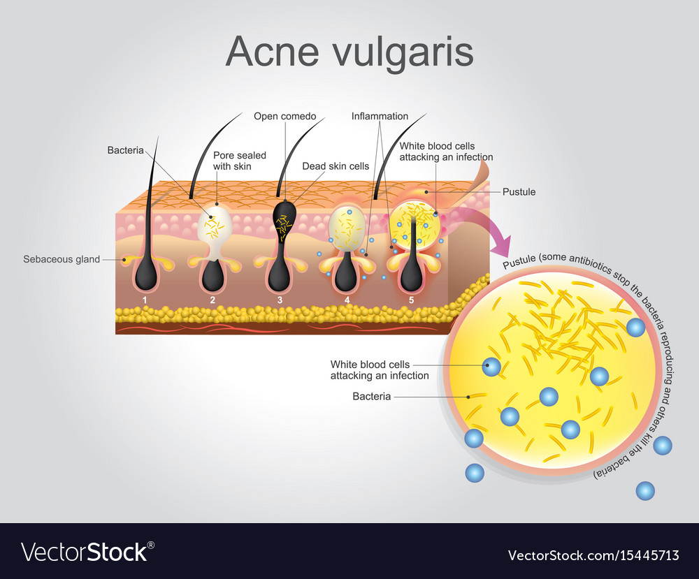 hight resolution of acne vulgaris vector image