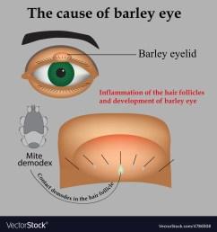 diagram of barley [ 1000 x 1080 Pixel ]