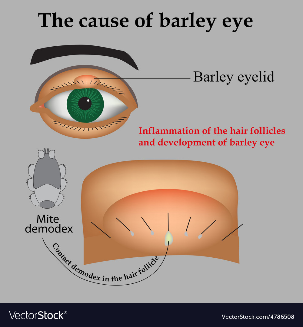 hight resolution of diagram of barley