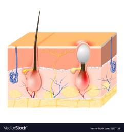 acne vector image [ 1000 x 1080 Pixel ]