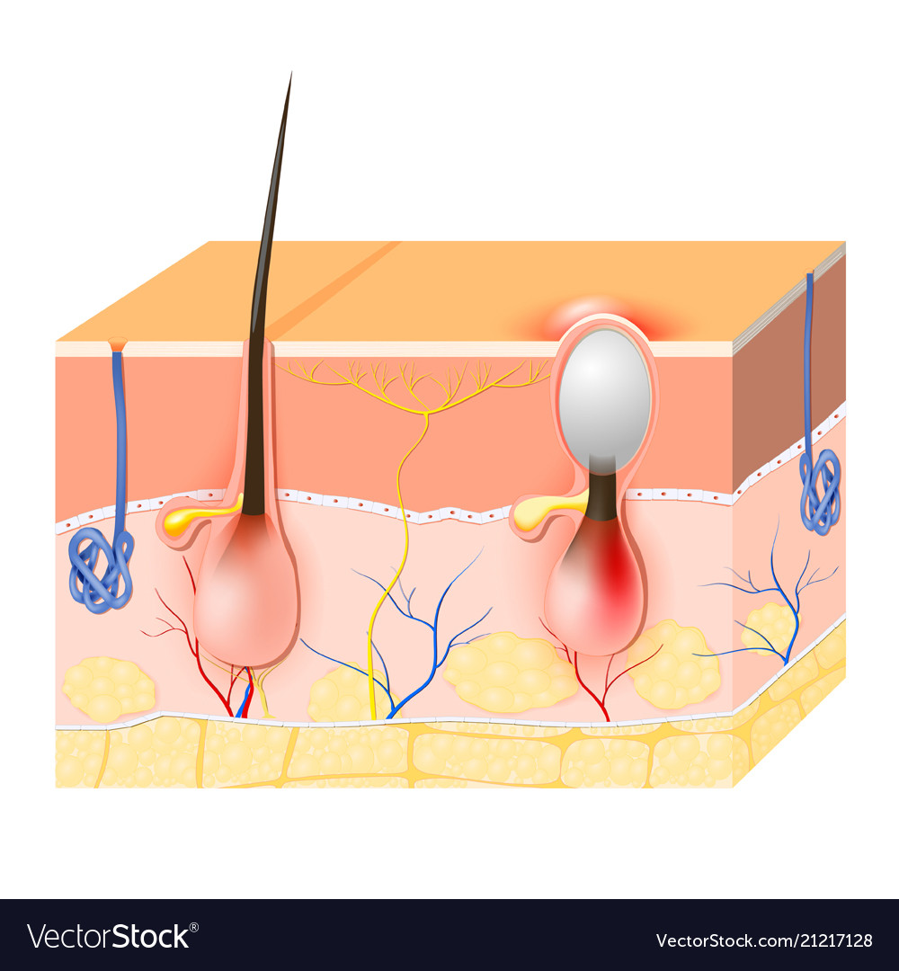 medium resolution of acne vector image