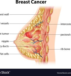 diagram of breast cancer vector image [ 1000 x 833 Pixel ]