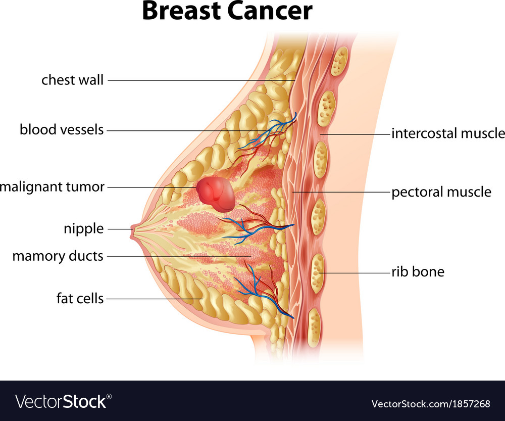 hight resolution of diagram of breast cancer vector image