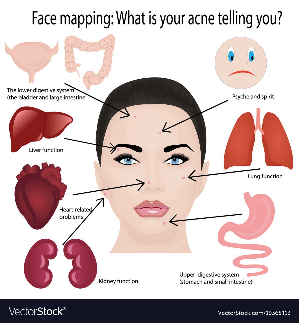 acne face diagram ford mondeo alternator faults of best wiring library