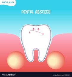 diagram of absces [ 1000 x 1080 Pixel ]