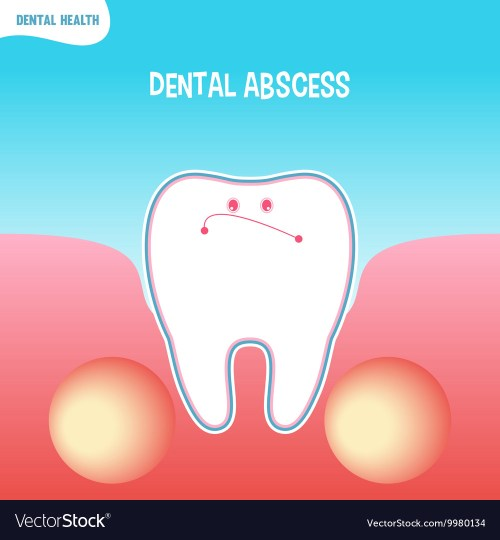 small resolution of diagram of absces