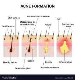 formation of acne vector image [ 1000 x 1080 Pixel ]