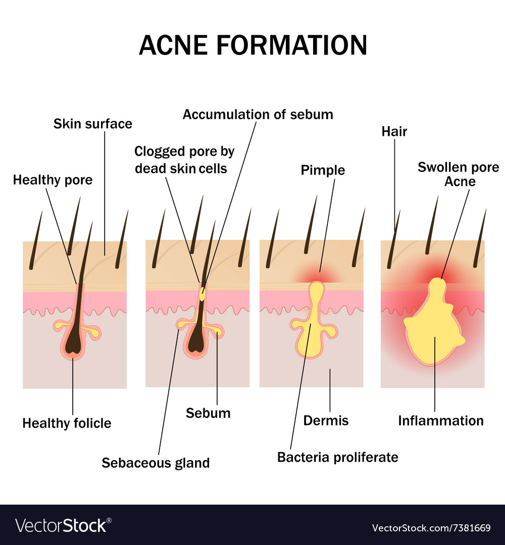hight resolution of formation of acne vector image