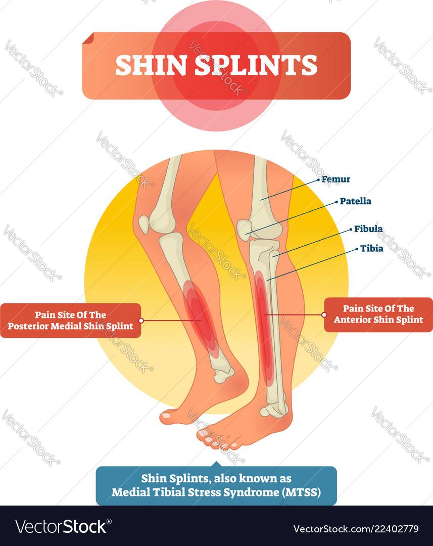 hight resolution of shin splints leg muscle pain vector image