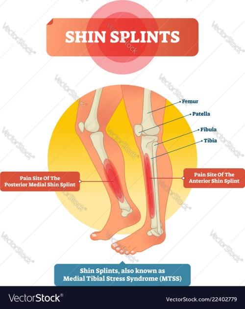 small resolution of shin splints leg muscle pain vector image