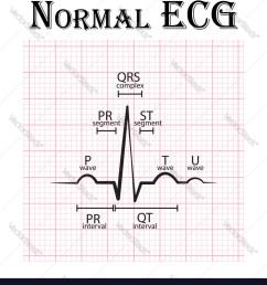 normal electrocardiogram vector image [ 907 x 1080 Pixel ]