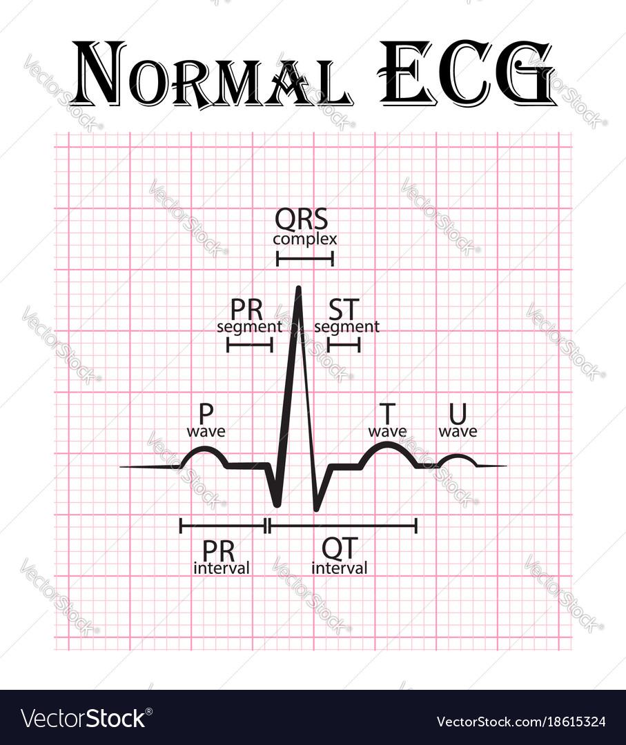 medium resolution of normal electrocardiogram vector image