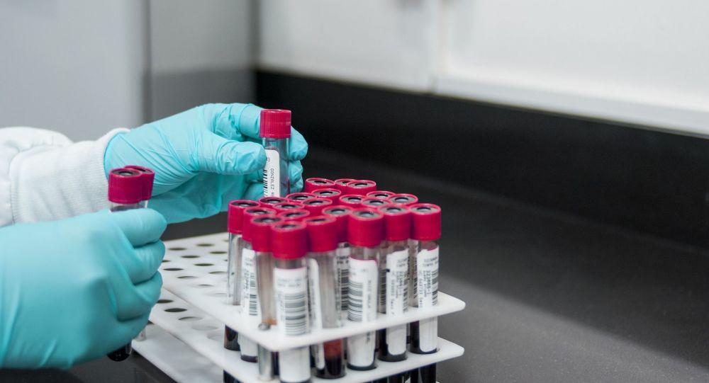 Des scientifiques russes trouvent pour la première fois des anticorps neutralisant le coronavirus