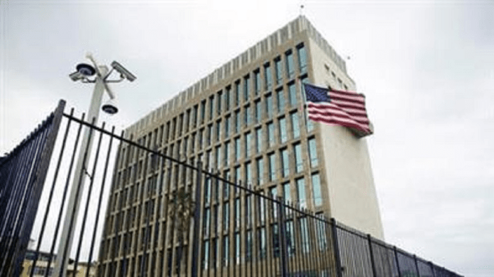 Study says the brains of US diplomats in Cuba