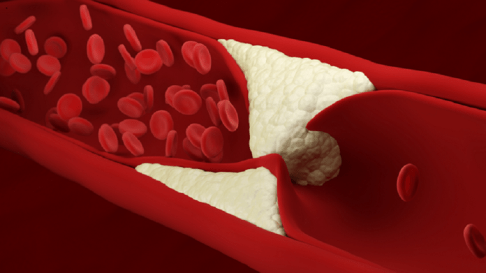 Explanation of the best way to start lowering cholesterol levels!