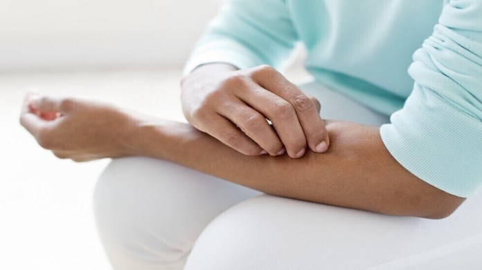 Dry, itchy skin can be a sign of a chronic disease