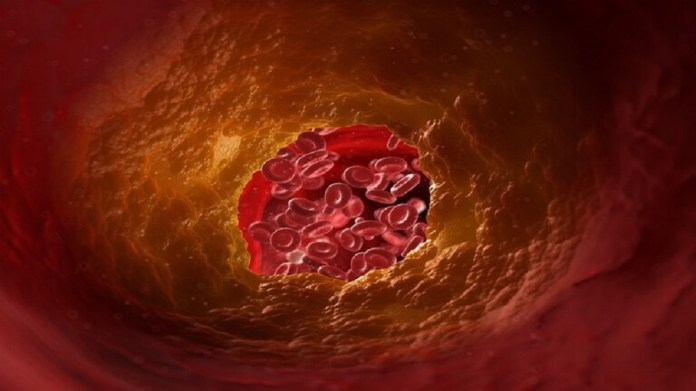 Discovering a new risk of high cholesterol level