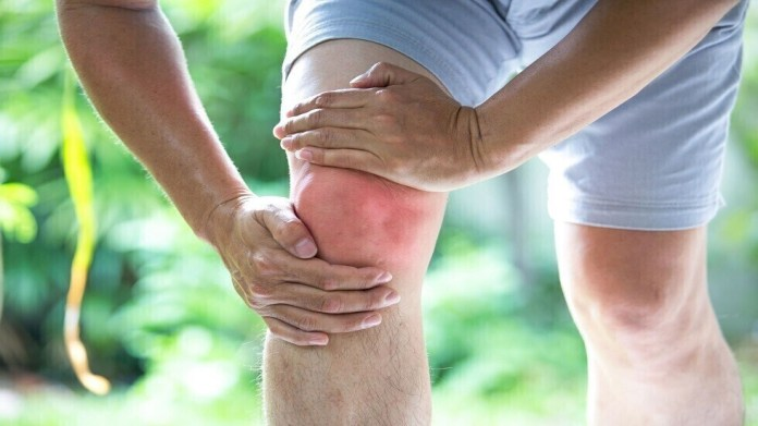 Four signs that arthritis shortens the life span of patients