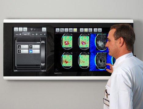 Digital Lightbox For Hospitals