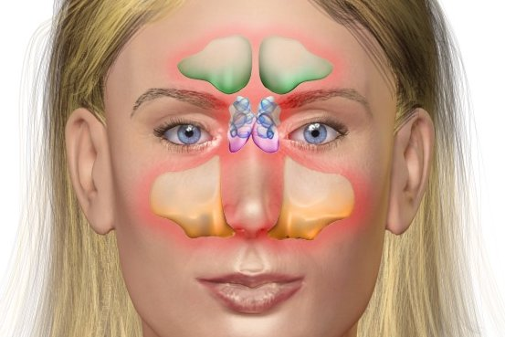 Diagram Of A Hospital Study Chronic Sinus Inflammation Association With