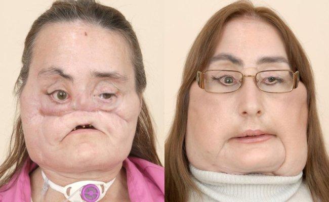 Face Transplant Recipient Connie Culp Dead At 57 Upi