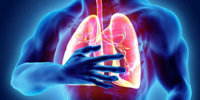 Penting Kenali Penyebab Gejala Dan Cara Pencegahan Penyakit Pneumonia Bola Net