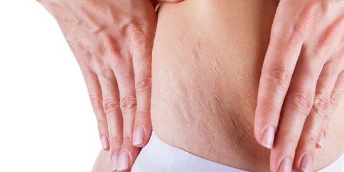 Image result for stretch mark pasca melahirkan