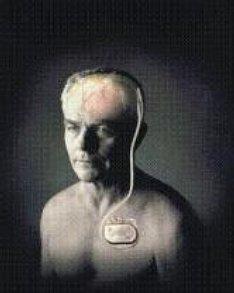 Brain pacemaker awakes man