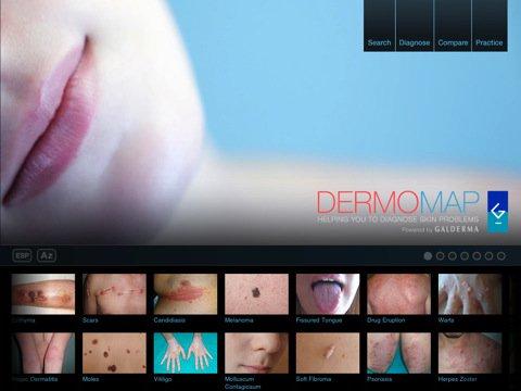 DermoMap HD