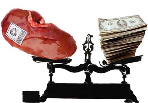 kidney-ipad2