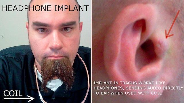 headphone-implant