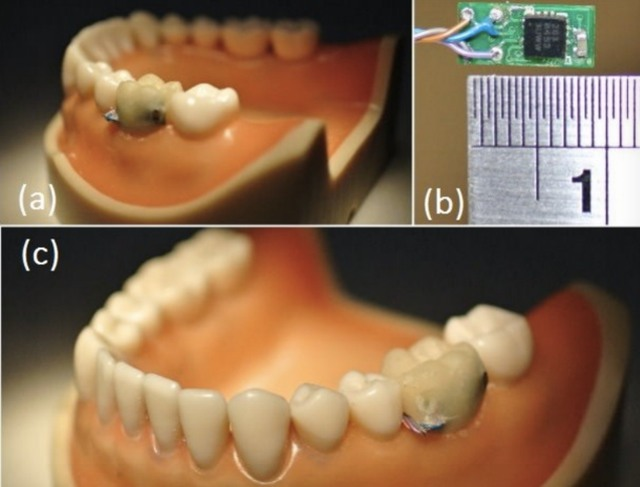 tooth-sensor